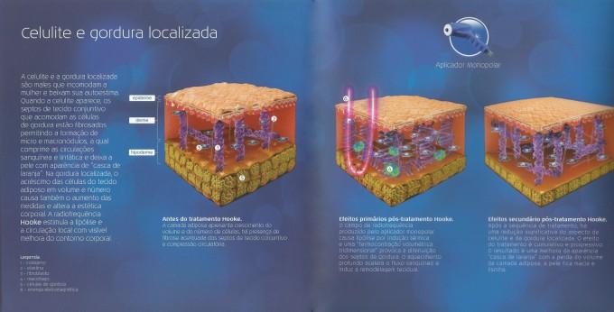 Hooke Celulite