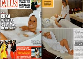 ILipo Revista Caras